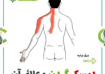 دیسک گردن و علائم آن