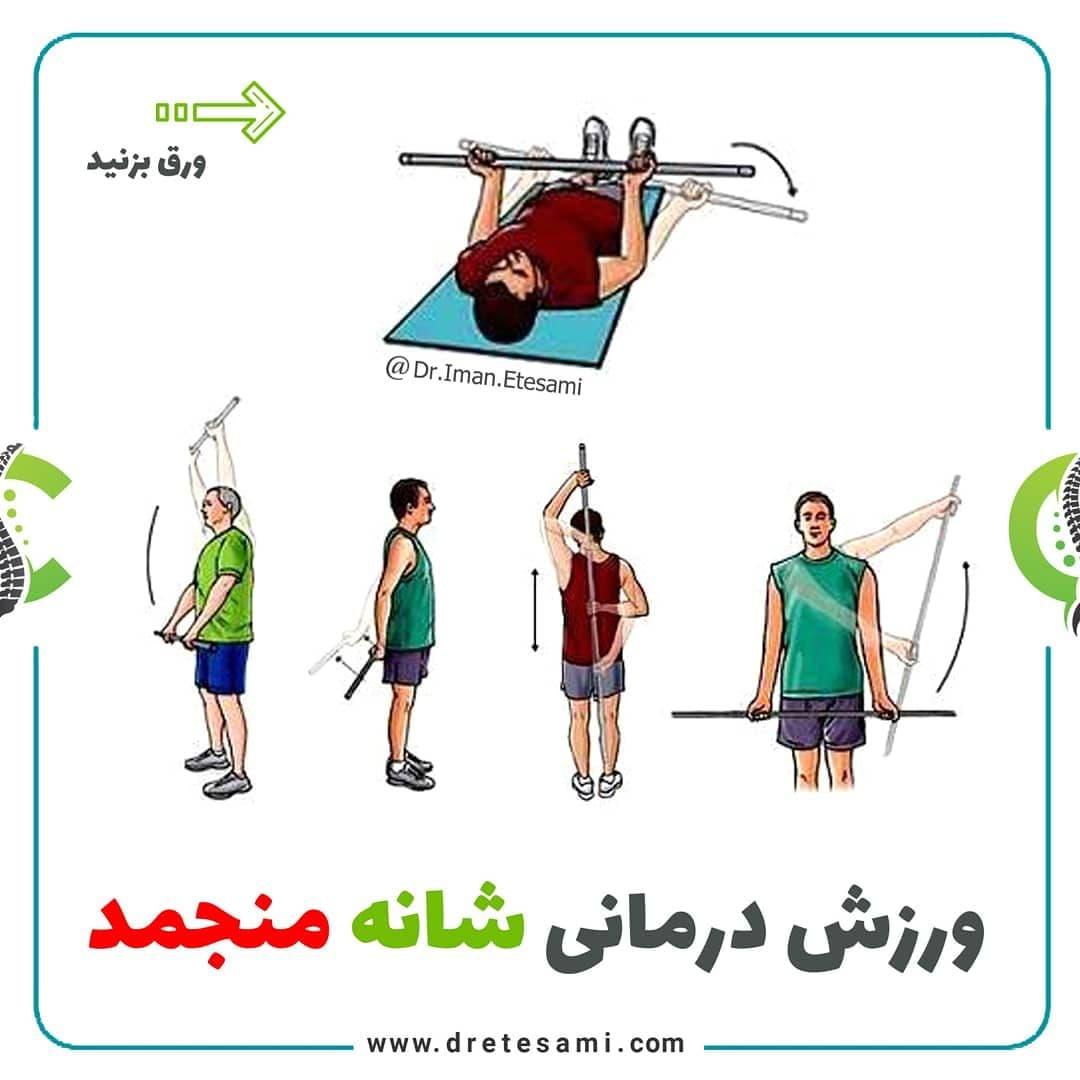 ورزش درمانی شانه منجمد