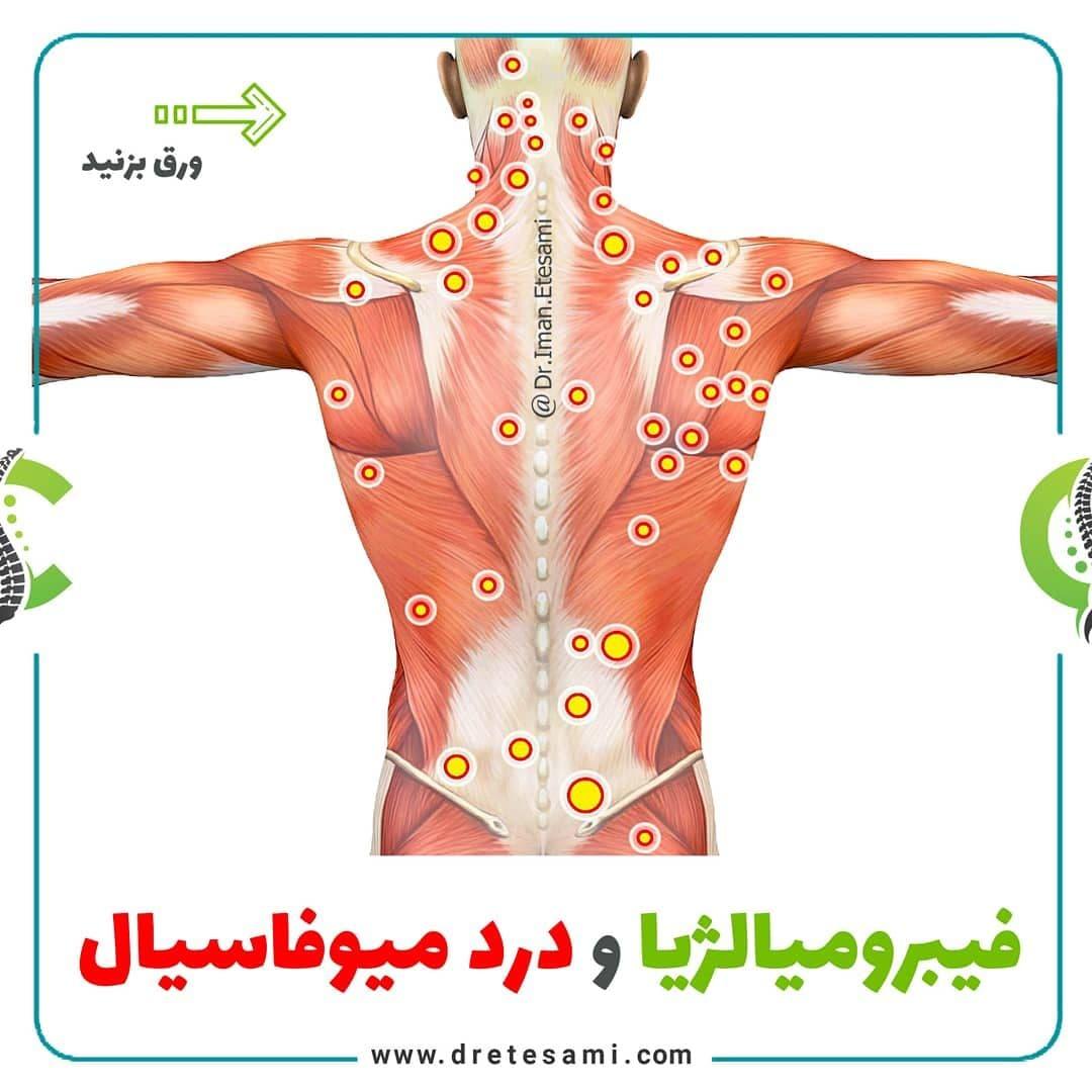 تفاوت فیبرومیالژیا و درد میوفاسیال