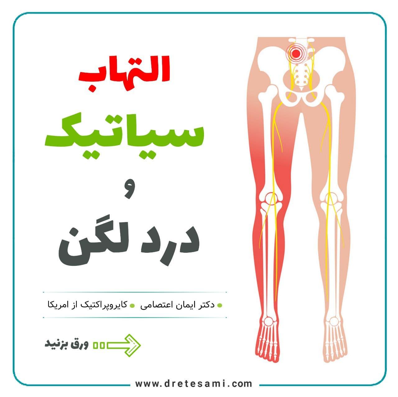 التهاب سیاتیک و درد لگن