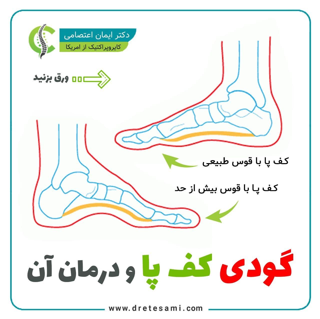 گودی کف پا و درمان آن