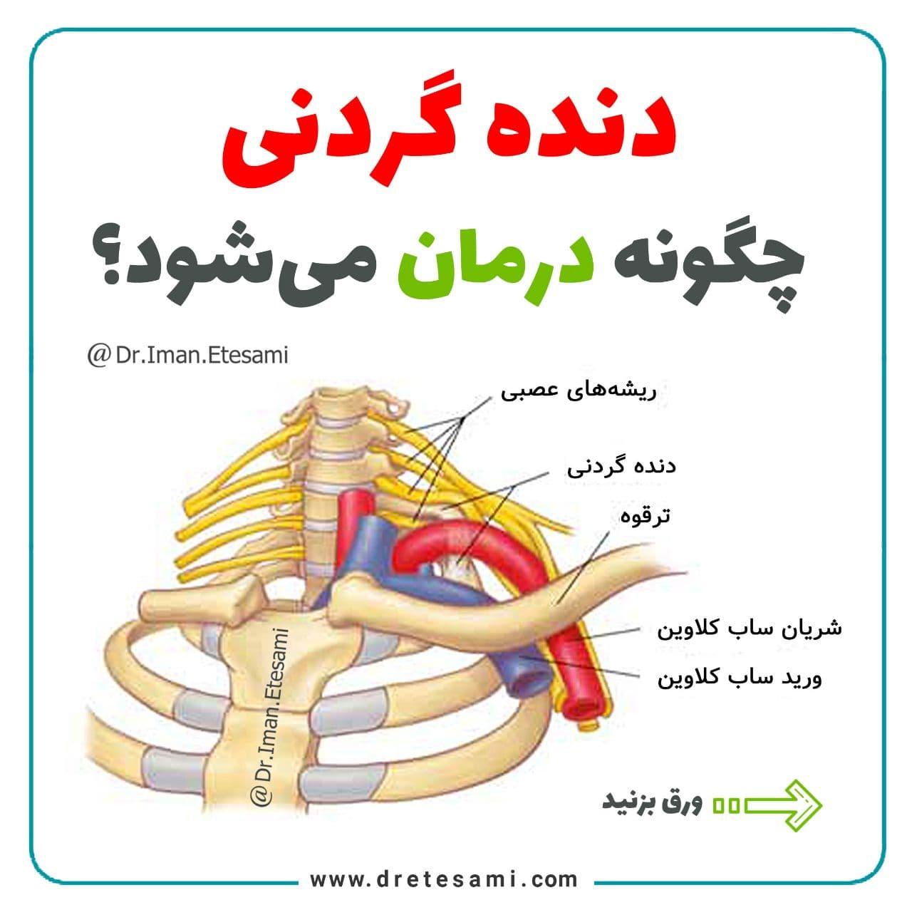دنده گردنی چگونه درمان میشود؟