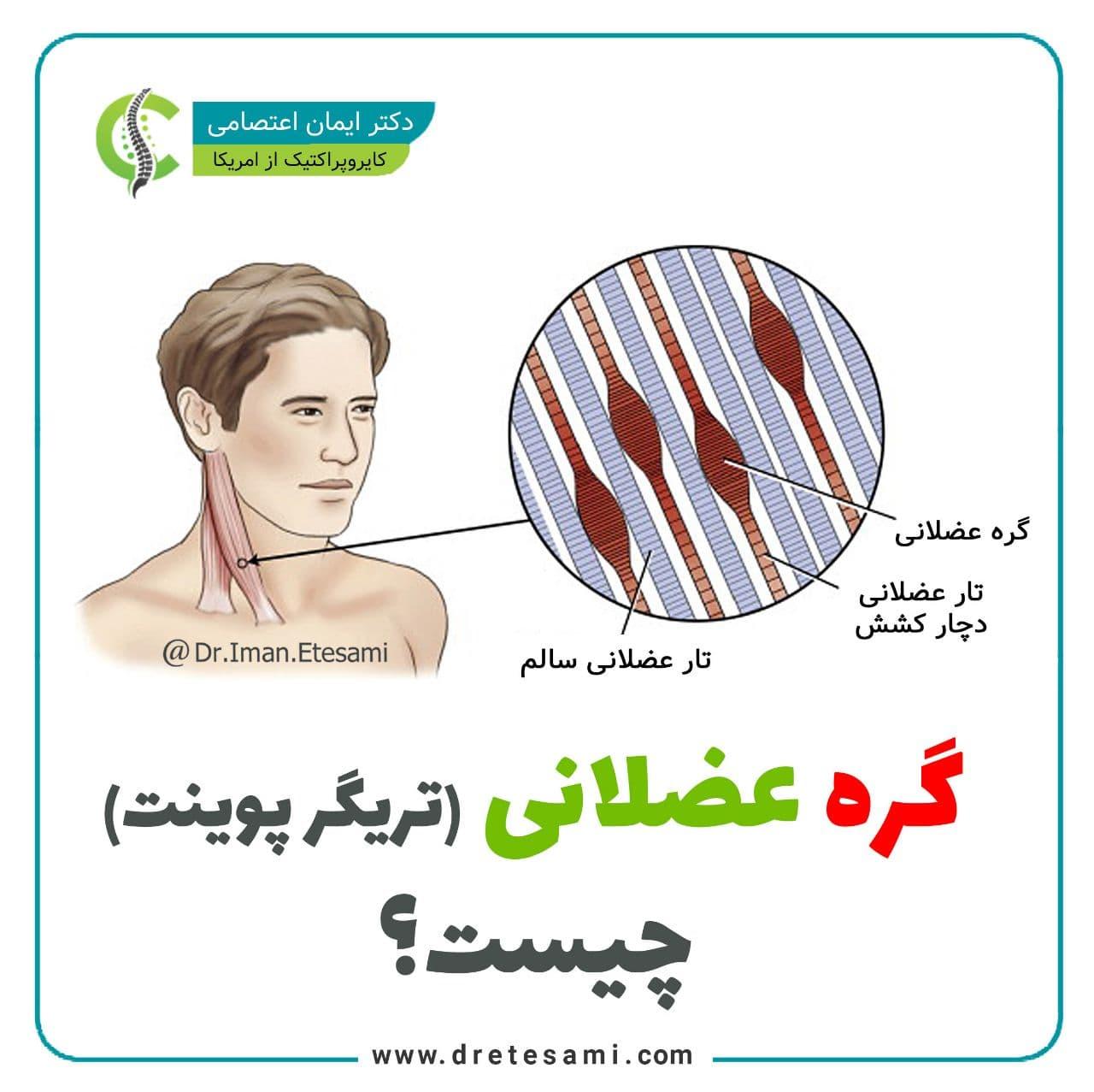 گره عضلانی (تریگر پوینت) یا نقاط ماشهای چیست؟